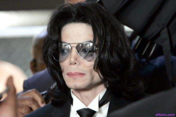 هل عانى مايكل جاكسون من مرض البهاق أم انه غيّر لون بشرته عن قصد؟